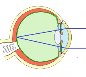 No astigmatism