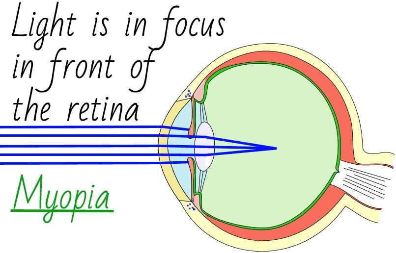 Causes Of Myopia
