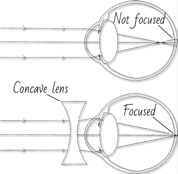 what causes myopia and what you can do to slow it down