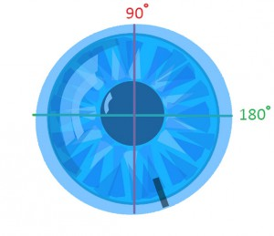 Misaligned Contact Lens