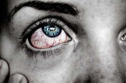 Top 8 Reasons You're Getting Red Eyes From Contacts