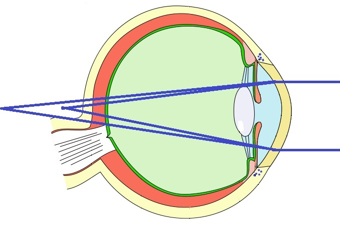 Converting a Glasses Prescription to Contact Lenses Hyperopic Astigmatism