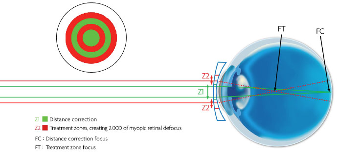Misight Contact Lenses - ActivControl Technology