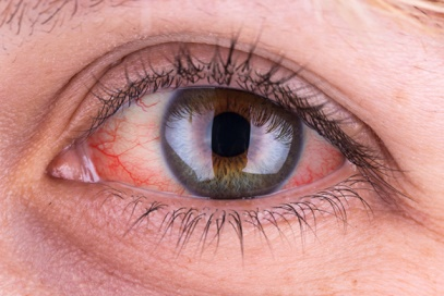 Top 15 Causes of Contact Lens Irritation