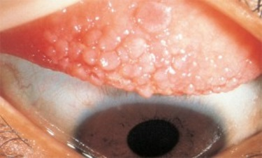 contact lens irritation - giant papillary conjunctivitis