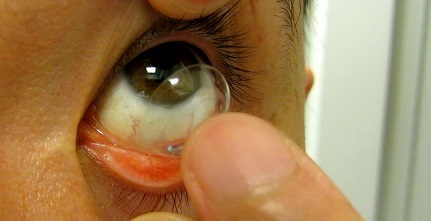 putting contact lenses into the eyes
