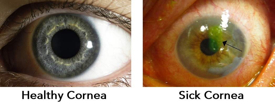 Healthy Cornea VS Sick Cornea