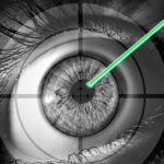 Can LASIK Fix Astigmatism?